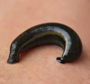 how to get rid of leeches