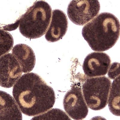 Ich parasites can cause koi cloudy eye