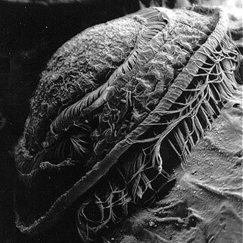 A scanning electron micrograph of a trichodinid ciliate